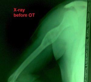 C1_before Xray